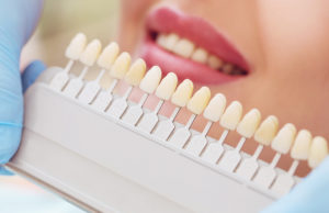 teeth whitening shade scale