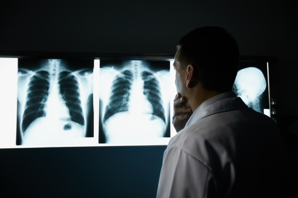 Doctor Looking at Lung Scans To Find Lung Cancer