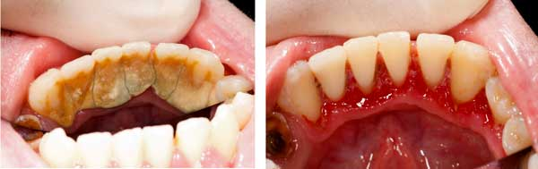 Severe Tartar Buildup - Before and After Image - Periodontal Disease and the Link to Heart Disease
